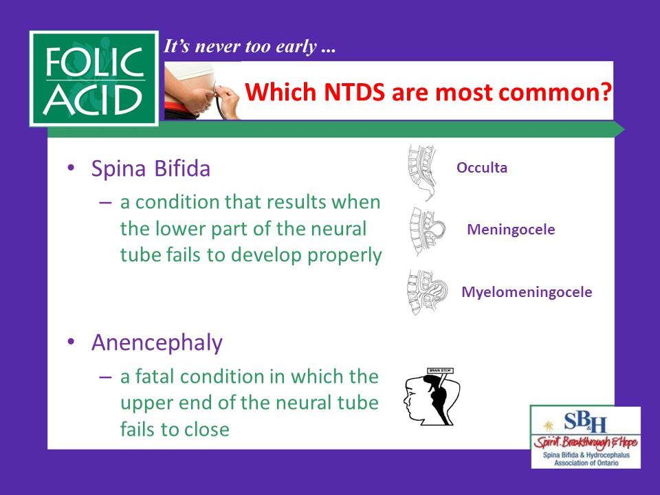Which NTDS are most common.
