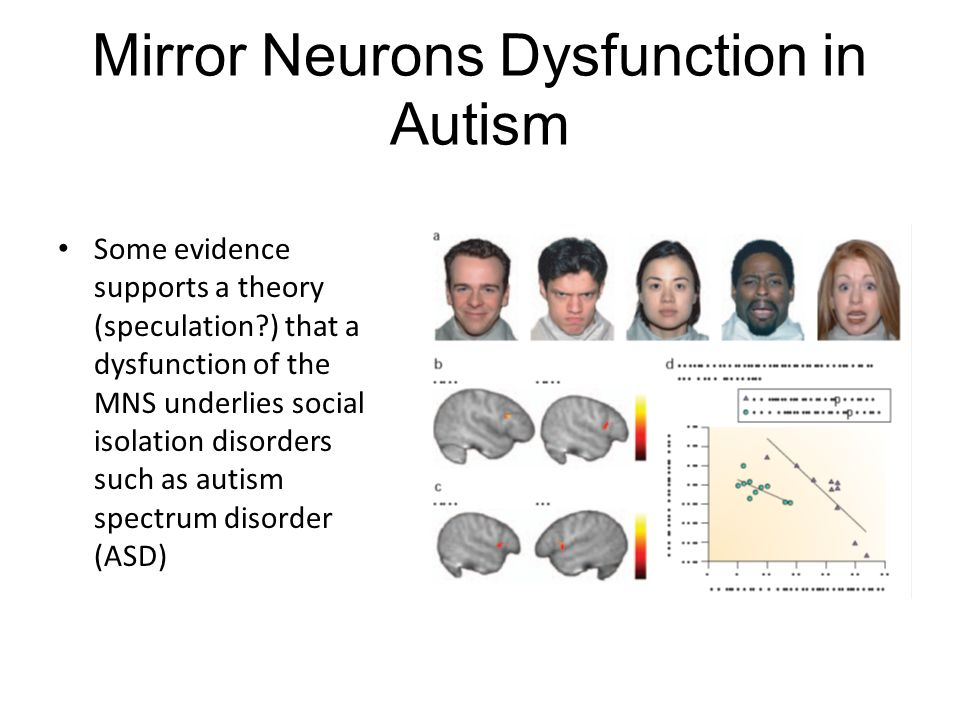Mirror Neurons Dysfunction in Autism Some evidence supports a theory (speculation?) that a dysfunction of the MNS underlies social isolation disorders such as autism spectrum disorder (ASD)