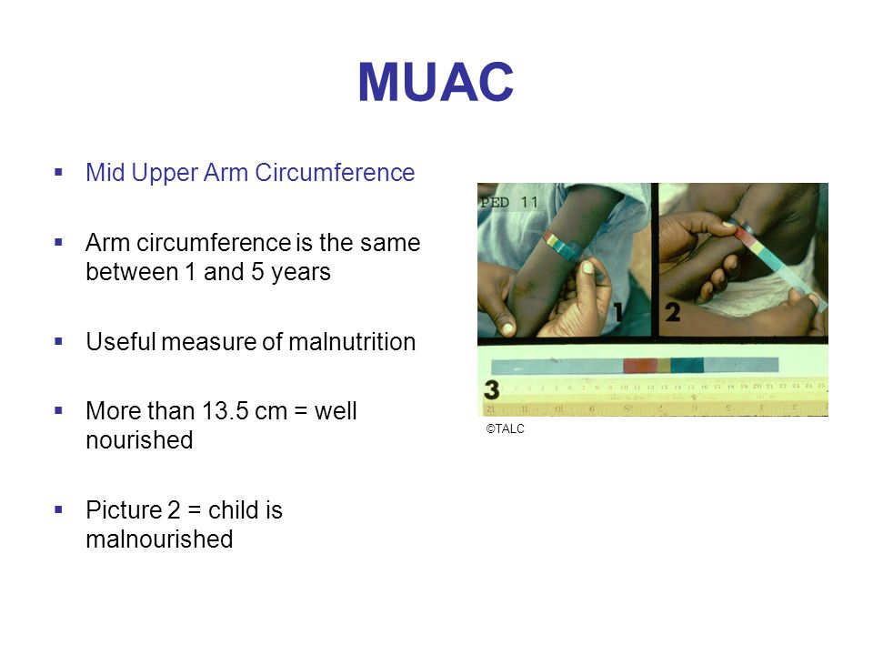 MUAC  Mid Upper Arm Circumference  Arm circumference is the same between 1 and 5 years  Useful measure of malnutrition  More than 13.5 cm = well nourished  Picture 2 = child is malnourished ©TALC