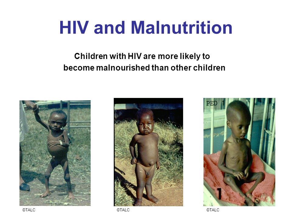 HIV and Malnutrition Children with HIV are more likely to become malnourished than other children ©TALC