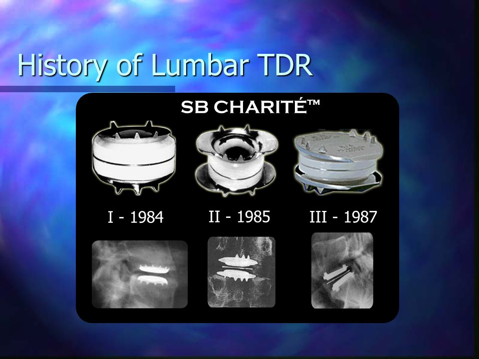 History Design Iterations Inventors Drs.Schellnack and Büttner-Janz Inventors Drs.