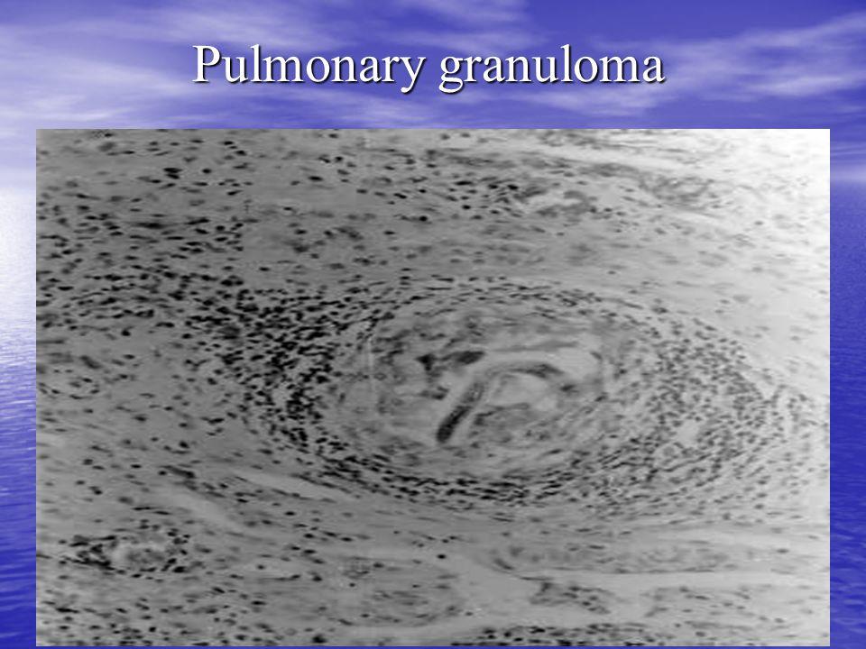 Pulmonary granuloma