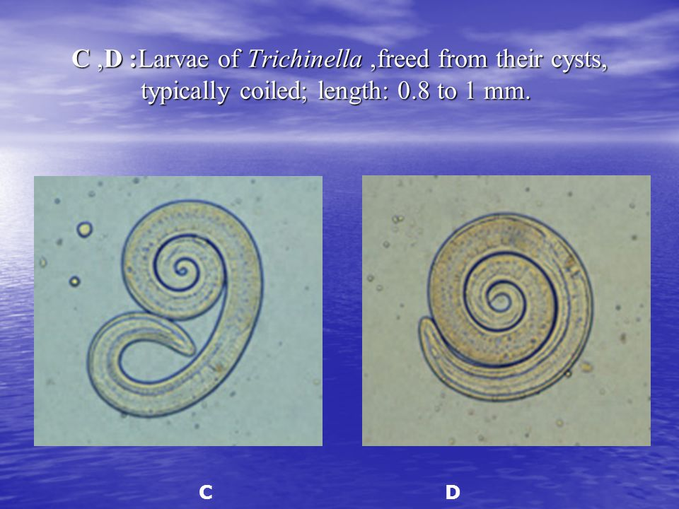 C, D: Larvae of Trichinella, freed from their cysts, typically coiled; length: 0.8 to 1 mm. C, D: Larvae of Trichinella, freed from their cysts, typic