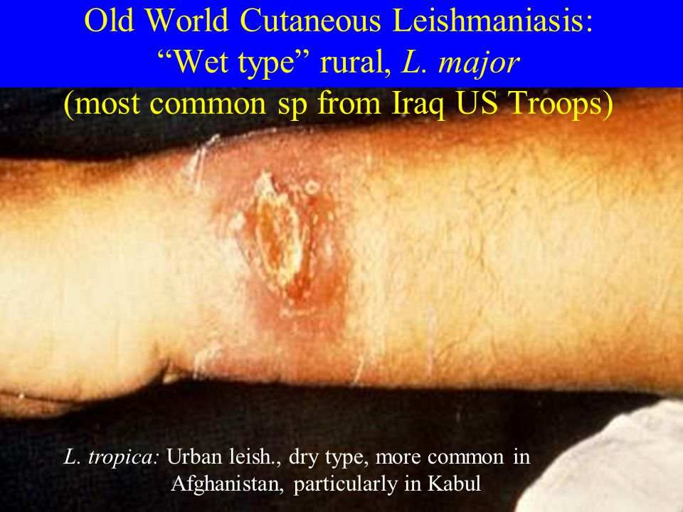 "Old World Cutaneous Leishmaniasis: ""Wet type"" rural, L. major (most common sp from Iraq US Troops) L. tropica: Urban leish., dry type, more common in"
