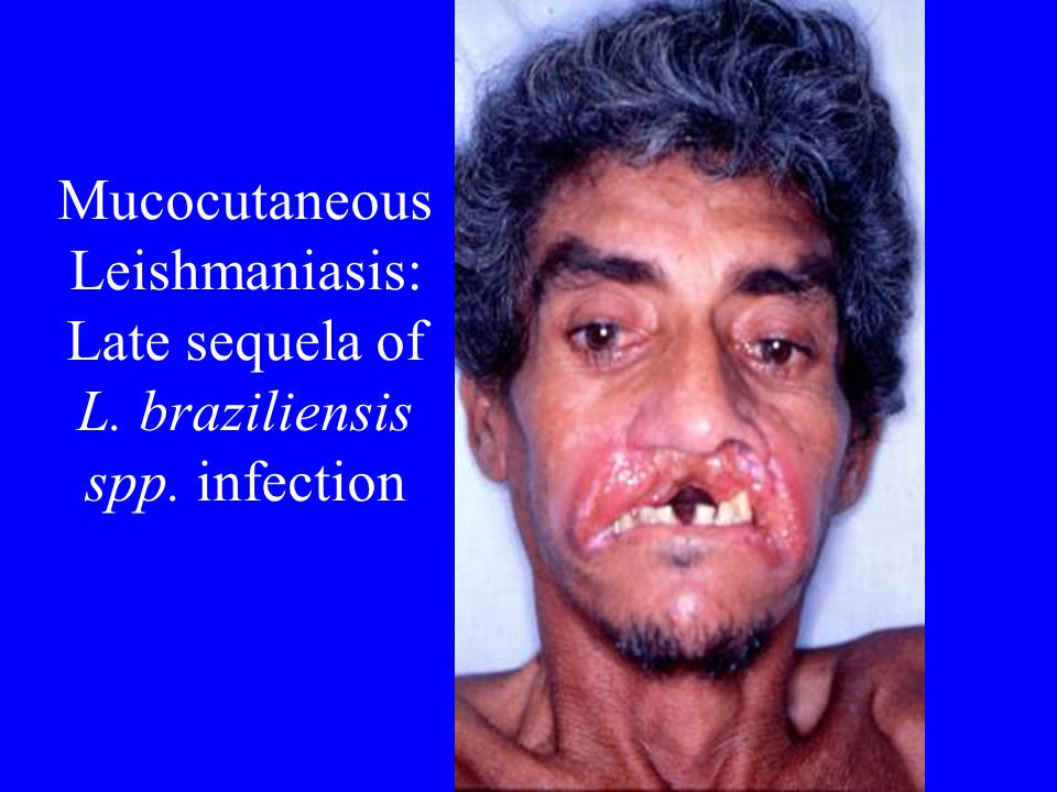 Mucocutaneous Leishmaniasis: Late sequela of L. braziliensis spp. infection