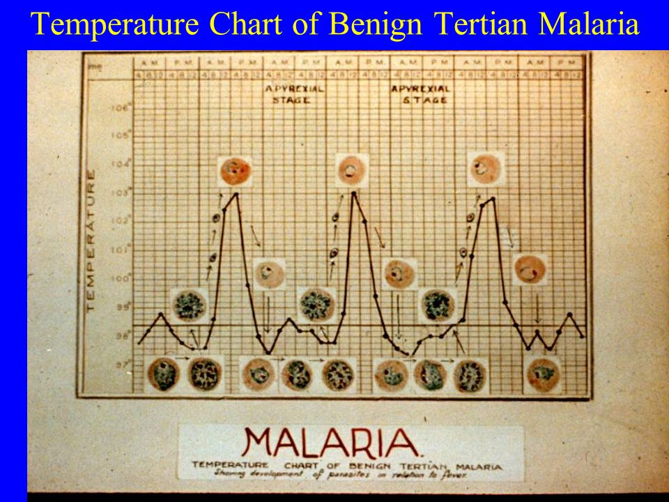 Temperature Chart of Benign Tertian Malaria