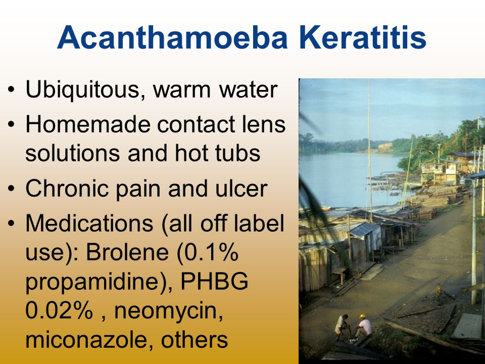 Acanthamoeba Keratitis Ubiquitous, warm water Homemade contact lens solutions and hot tubs Chronic pain and ulcer Medications (all off label use): Bro