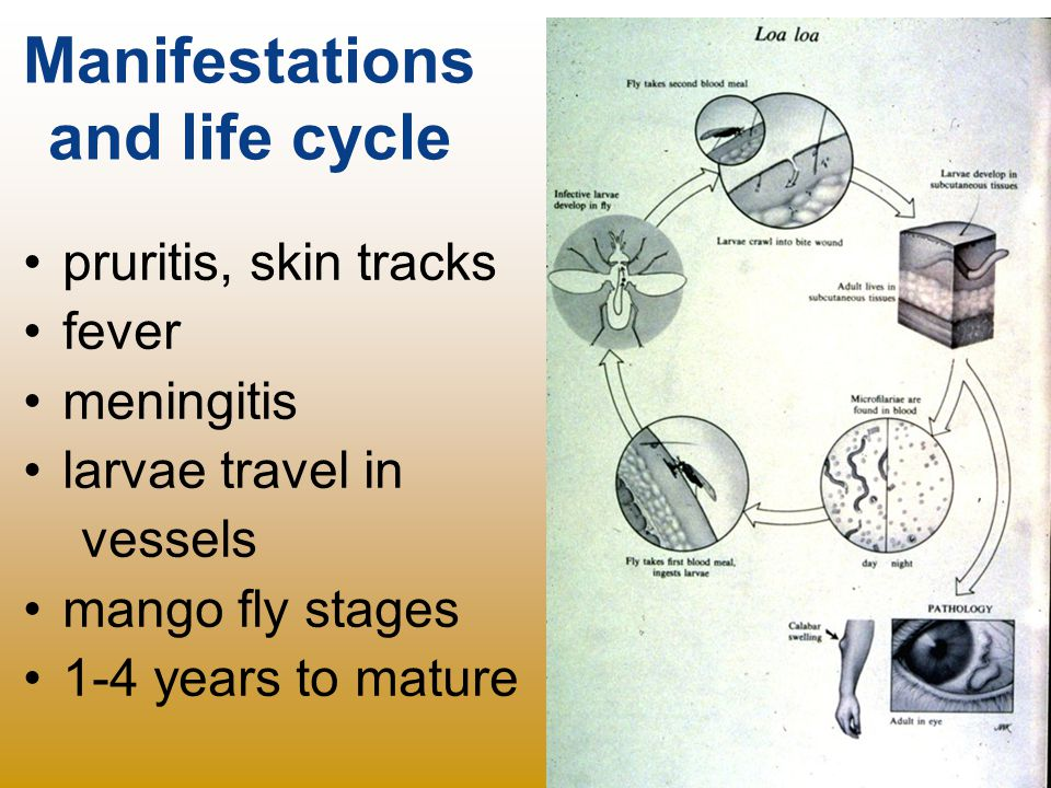 Manifestations and life cycle pruritis, skin tracks fever meningitis larvae travel in vessels mango fly stages 1-4 years to mature