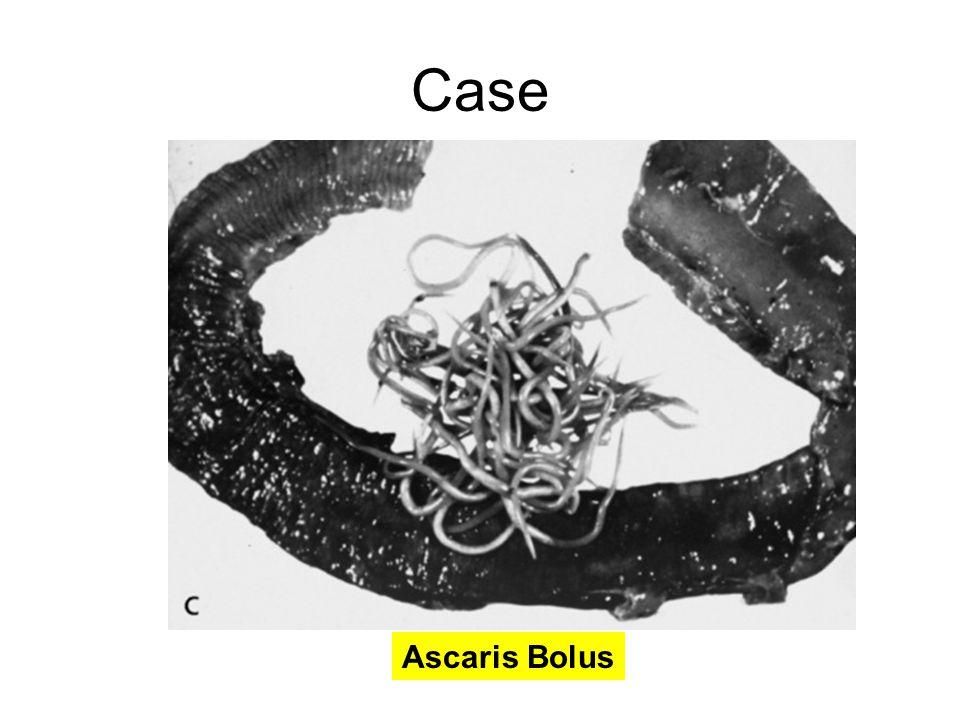 Case Ascaris Bolus