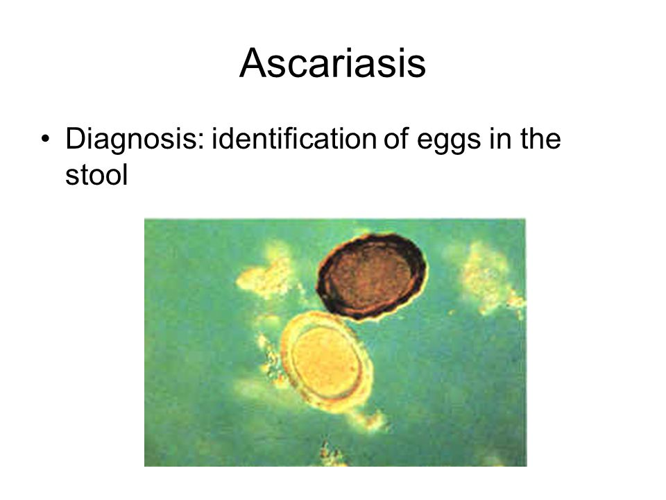 Ascariasis Diagnosis: identification of eggs in the stool