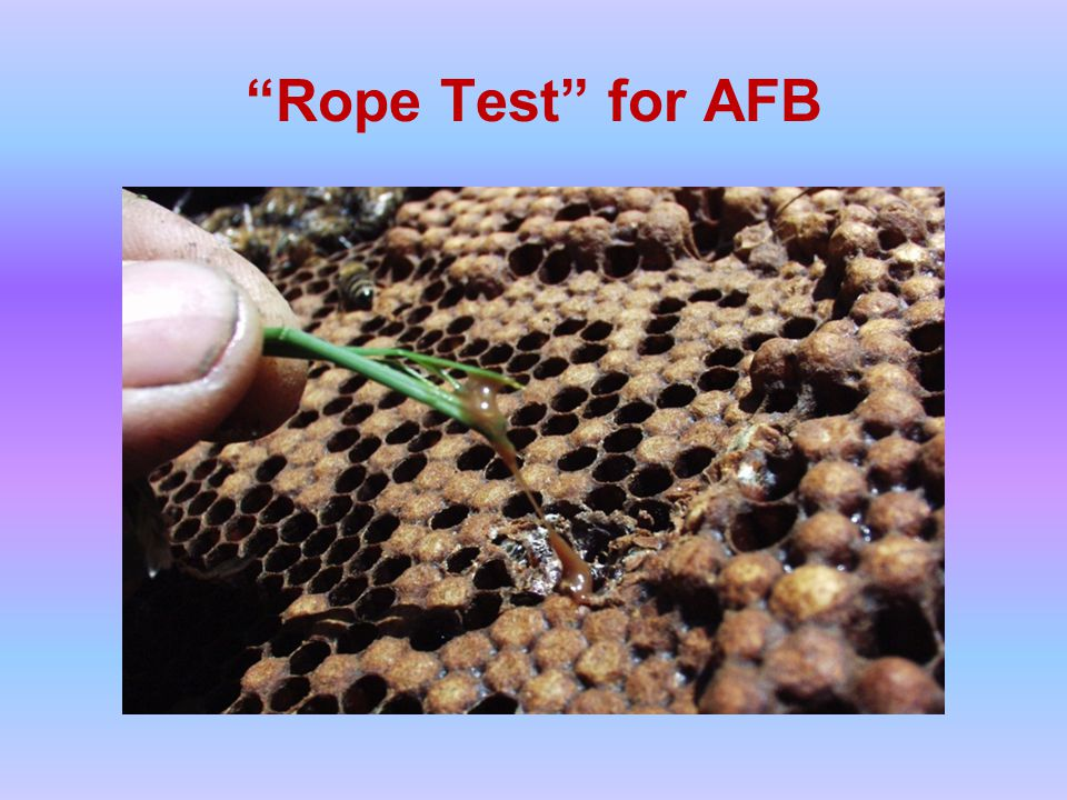 Rope Test for AFB
