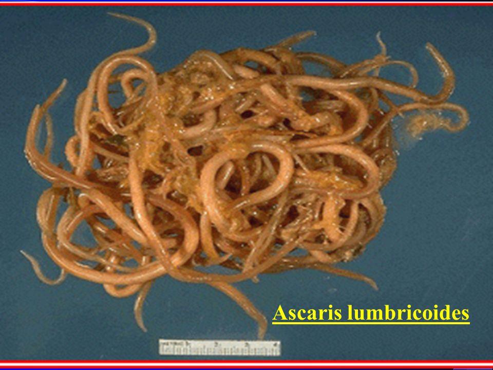 Ascaris lumbricoides