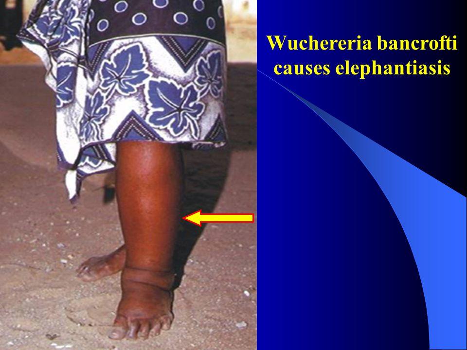 Wuchereria bancrofti causes elephantiasis