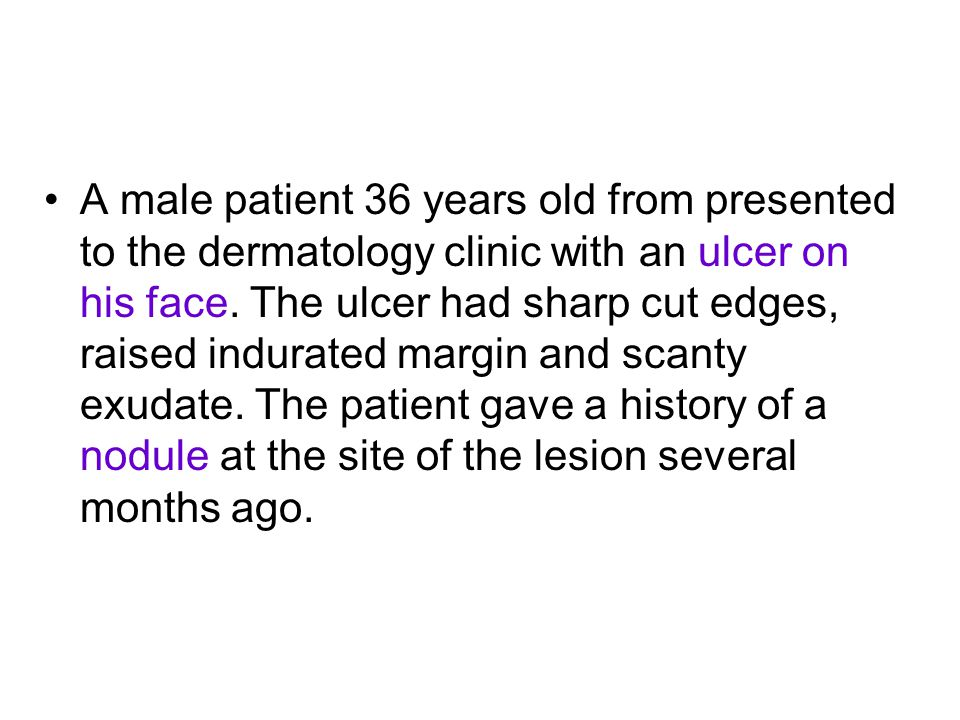 A male patient 36 years old from presented to the dermatology clinic with an ulcer on his face. The ulcer had sharp cut edges, raised indurated margin