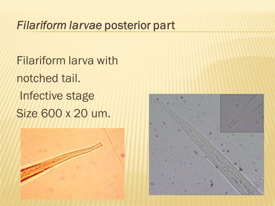 Filariform larvae posterior part Filariform larva with notched tail. Infective stage Size 600 x 20 um.
