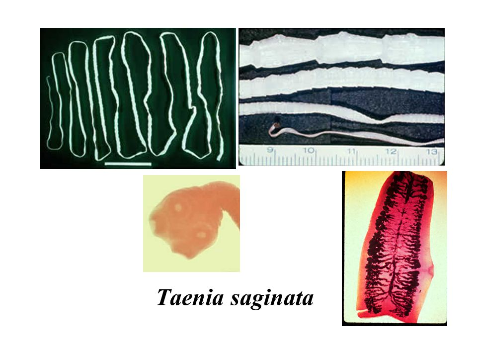 Treatment of Tapeworms Intestinal stages: Praziquantel Tissue stages ( Hydatid, cysticersosis): –Depends on clinical condition : Surgical and/or Albendazole