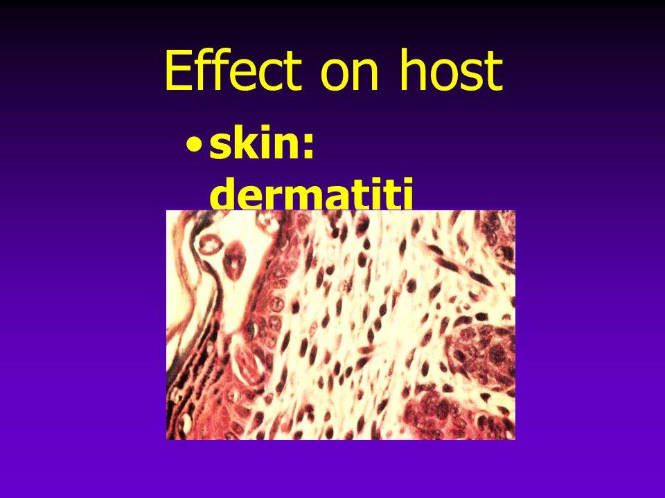 Effect on host skin: dermatiti s