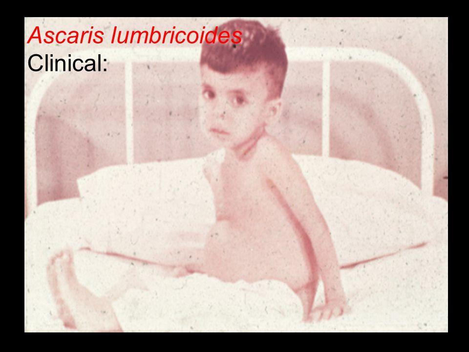 Ascaris lumbricoides Clinical: