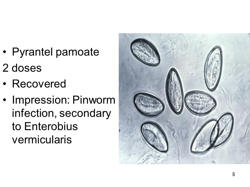 Pyrantel pamoate 2 doses Recovered Impression: Pinworm infection, secondary to Enterobius vermicularis 5