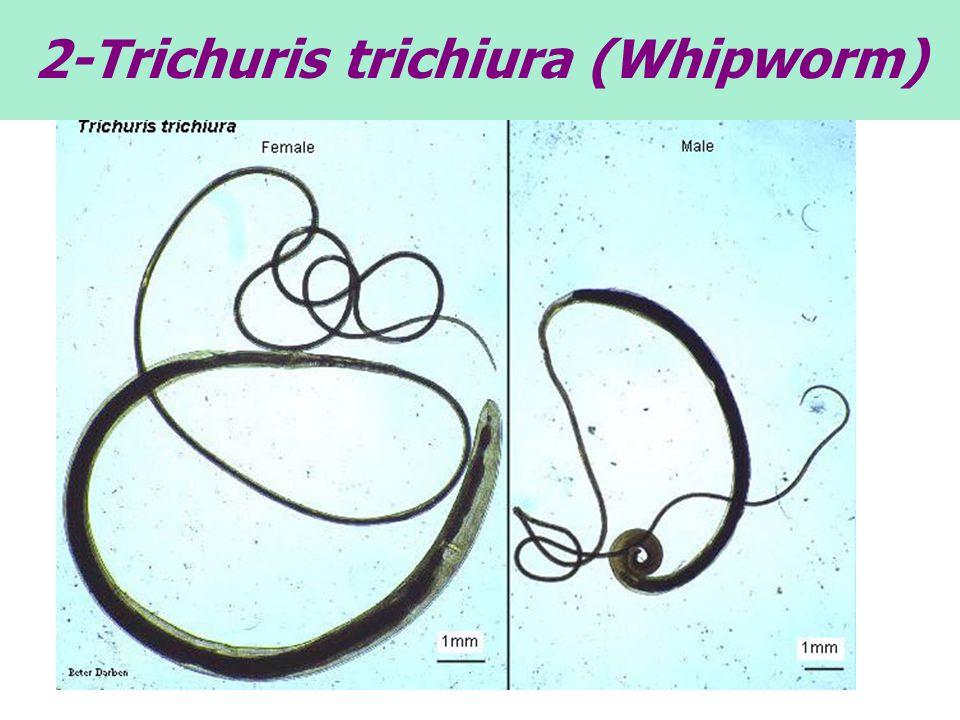 2-Trichuris trichiura (Whipworm)