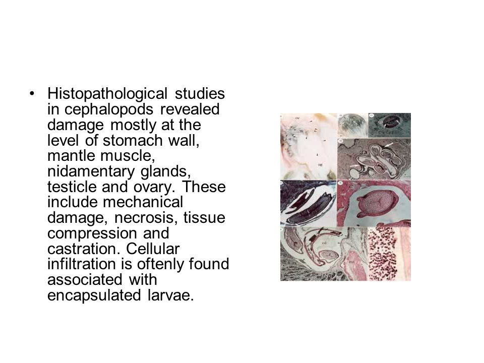 Histopathological studies in cephalopods revealed damage mostly at the level of stomach wall, mantle muscle, nidamentary glands, testicle and ovary. T