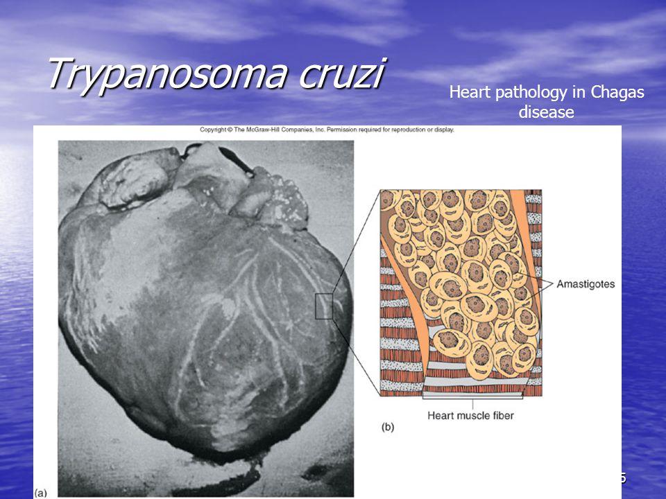 25 Trypanosoma cruzi Heart pathology in Chagas disease