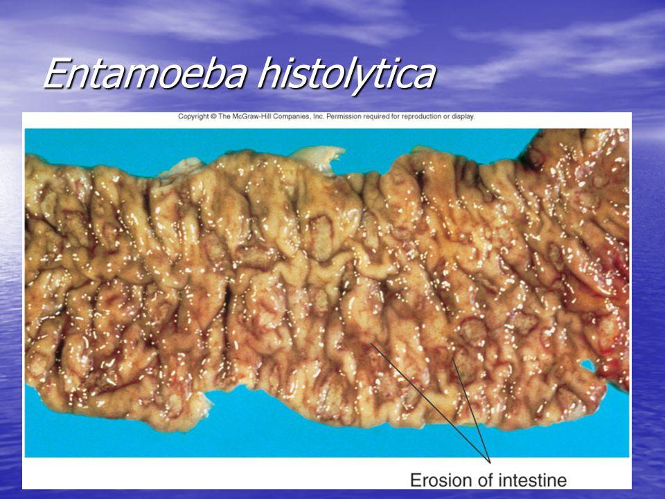 9 Entamoeba histolytica