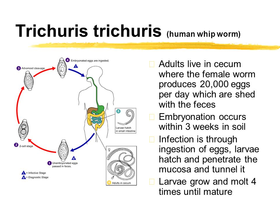 The Hygiene Hypothesis: Treatment by worm infection.