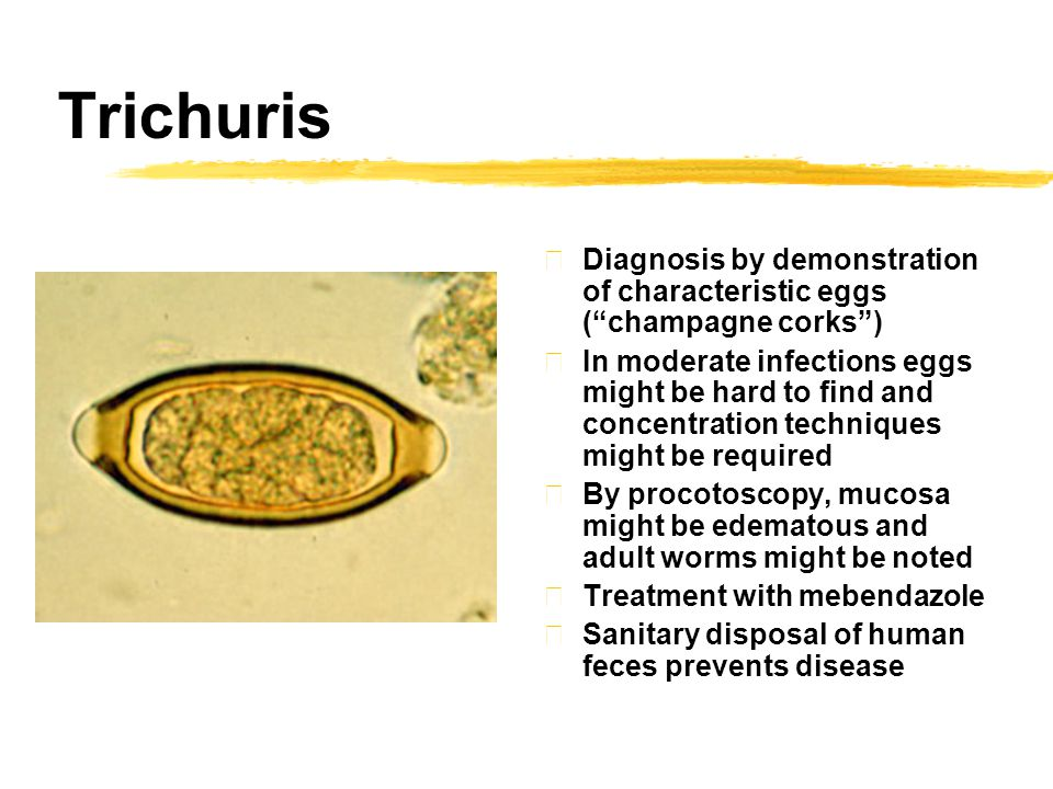 Trichuris zDiagnosis by demonstration of characteristic eggs ( champagne corks ) zIn moderate infections eggs might be hard to find and concentration techniques might be required zBy procotoscopy, mucosa might be edematous and adult worms might be noted zTreatment with mebendazole zSanitary disposal of human feces prevents disease