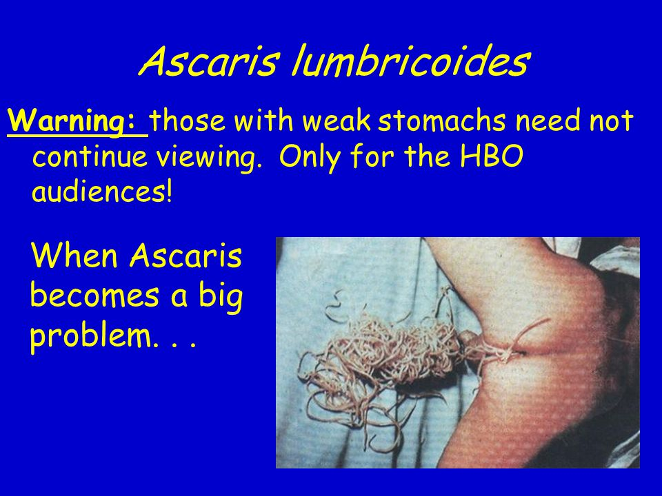 Ascaris lumbricoides Warning: those with weak stomachs need not continue viewing.