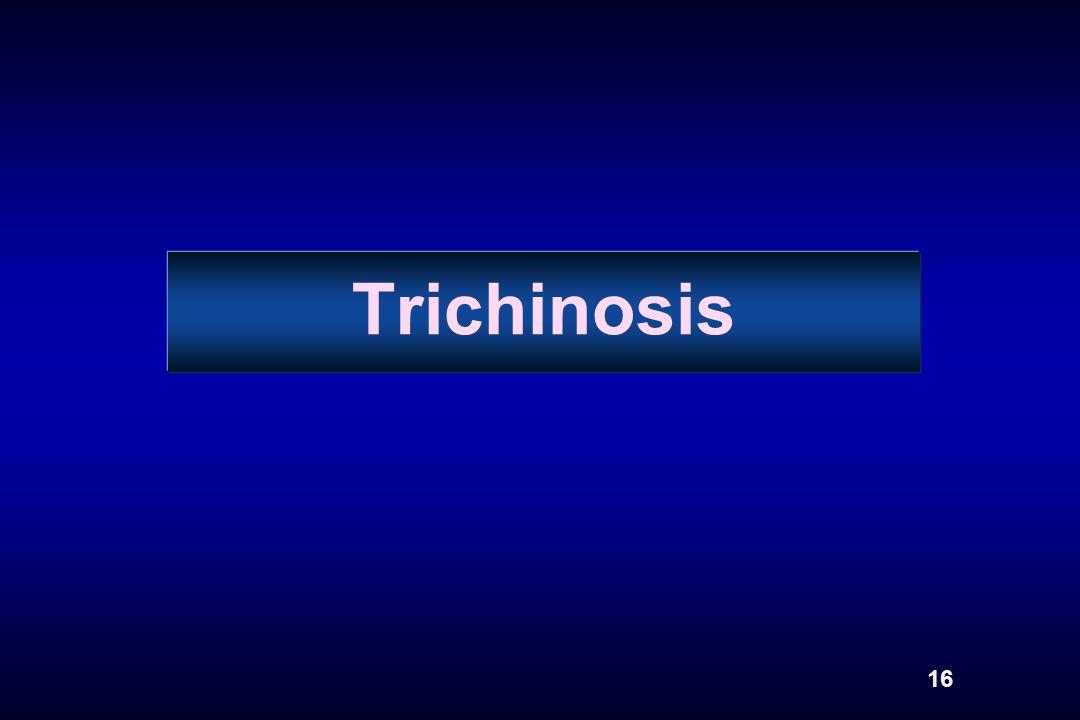 Trichinosis 16