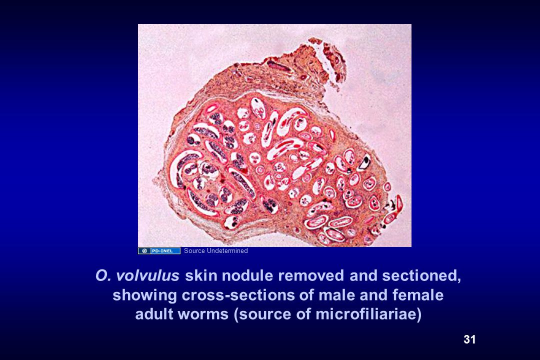O. volvulus skin nodule removed and sectioned, showing cross-sections of male and female adult worms (source of microfiliariae) 31 Source Undetermined