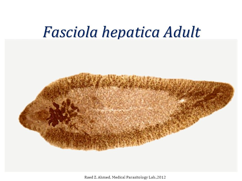 Fasciola hepatica Adult Raed Z. Ahmed, Medical Parasitology Lab.,2012