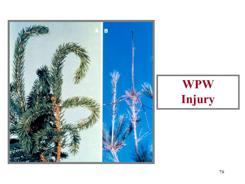 78 WPW Adult And Twig Injury