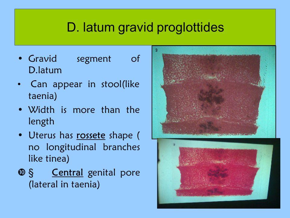 D. latum gravid proglottides Gravid segment of D.latum Can appear in stool(like taenia) Width is more than the length Uterus has rossete shape ( no lo
