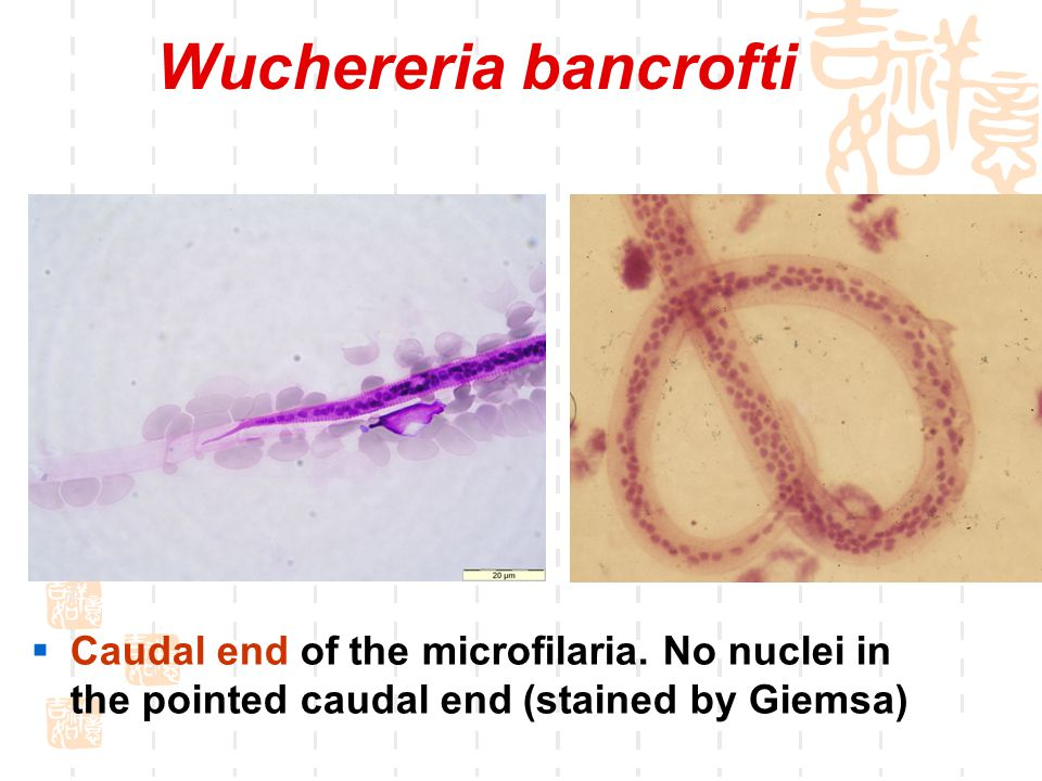 Wuchereria bancrofti Graceful curves of the microfilaria.