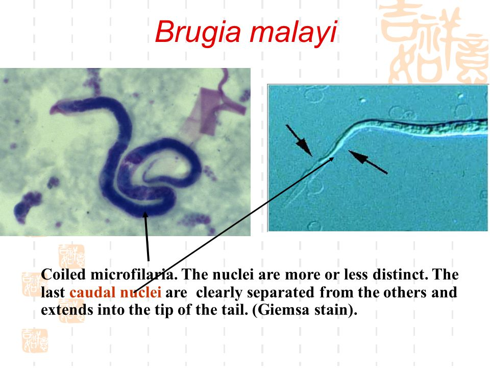 Wuchereria bancrofti  Caudal end of the microfilaria.