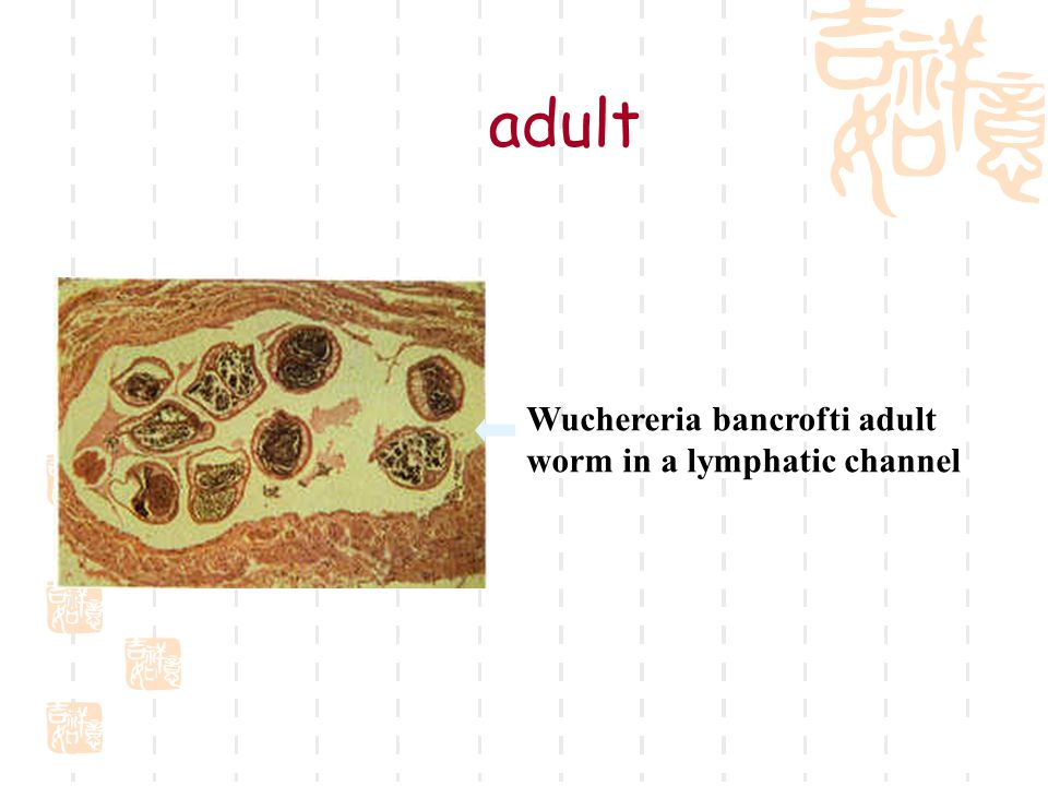Wuchereria bancrofti adult worm in a lymphatic channel adult