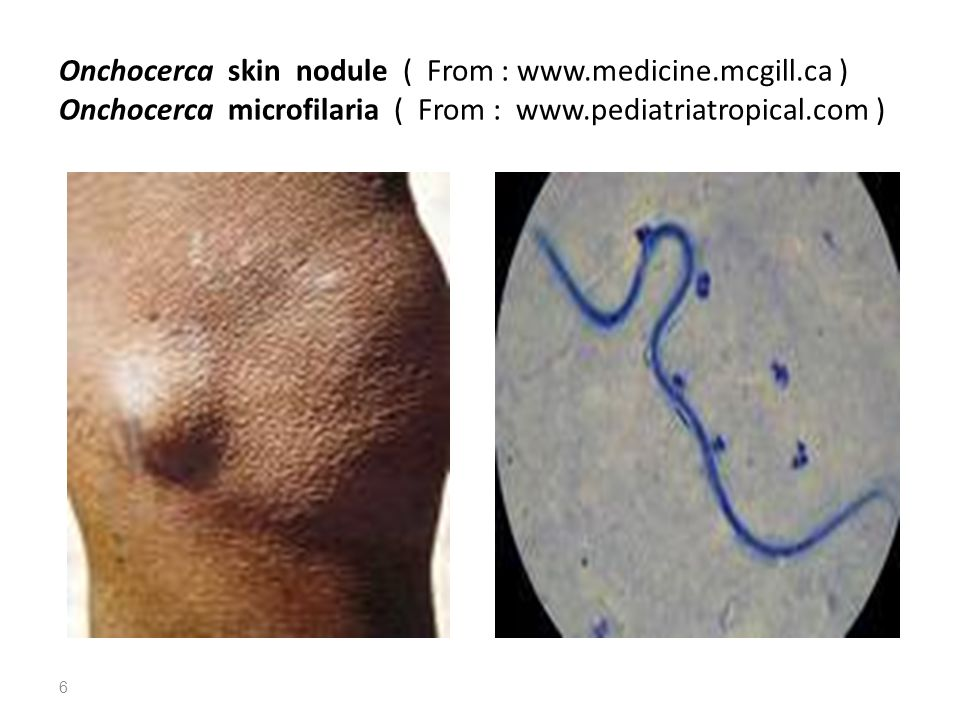 Onchocerca skin nodule ( From : www.medicine.mcgill.ca ) Onchocerca microfilaria ( From : www.pediatriatropical.com ) 6