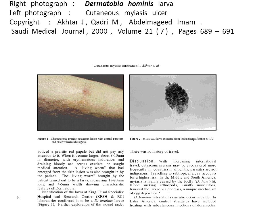 Right photograph : Dermatobia hominis larva Left photograph : Cutaneous myiasis ulcer Copyright : Akhtar J, Qadri M, Abdelmageed Imam.