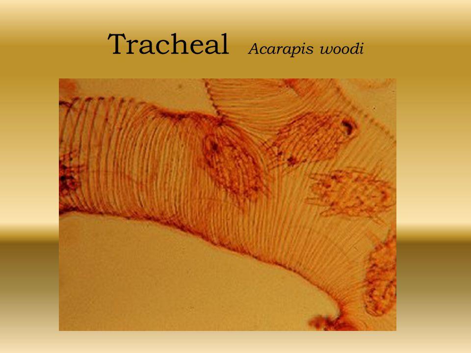 Tracheal Acarapis woodi