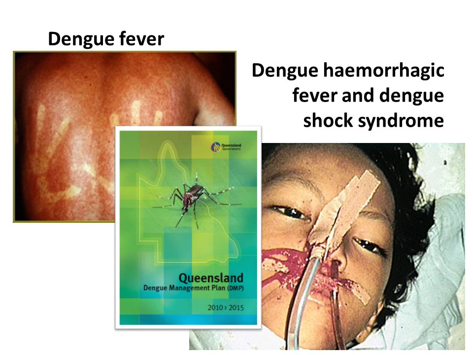Human African Trypanosomiasis (HAT) Initial dermatological presentation Diagnosed when presented 2 mths later with weight loss, fevers, confusion, seizures J Travel Med.2008;15(5):375 MJA 2010;192(7):417