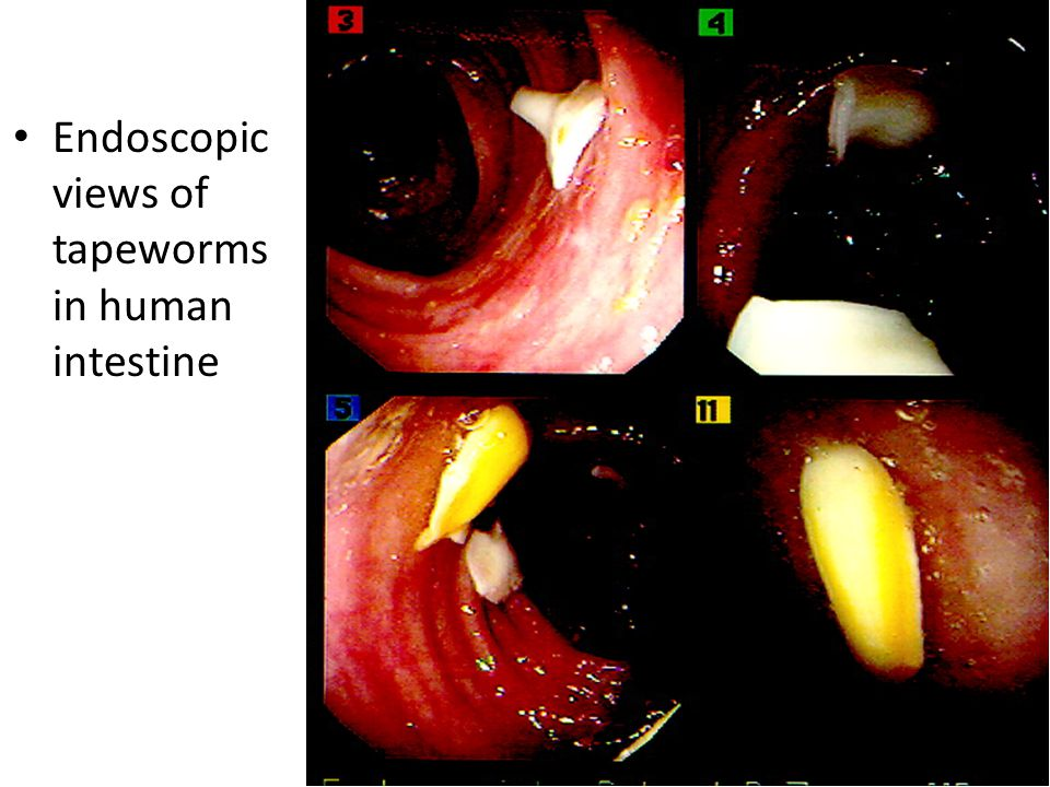 Endoscopic views of tapeworms in human intestine