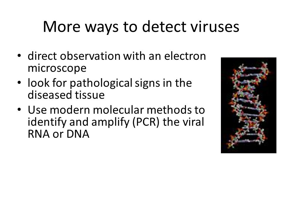 More ways to detect viruses direct observation with an electron microscope look for pathological signs in the diseased tissue Use modern molecular met