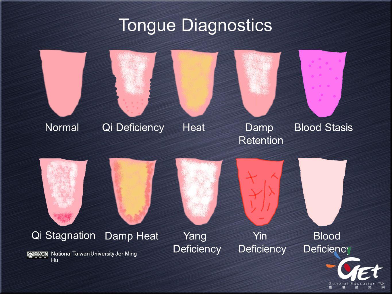 Tongue Diagnostics NormalQi DeficiencyHeatDamp Retention Blood Stasis Qi Stagnation Damp HeatYang Deficiency Yin Deficiency Blood Deficiency National