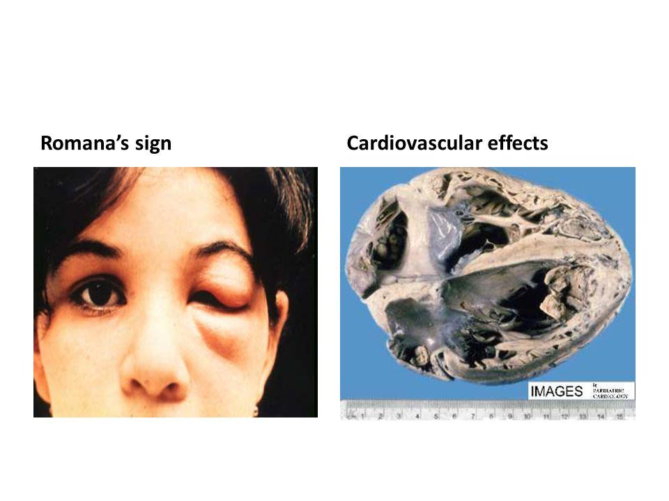Romana's signCardiovascular effects