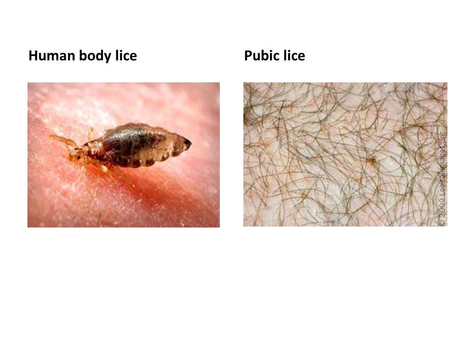 Human body licePubic lice