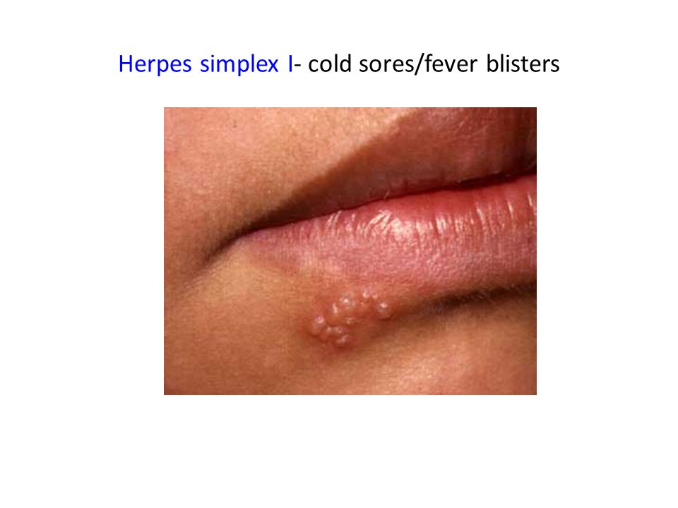 Herpes simplex I- cold sores/fever blisters