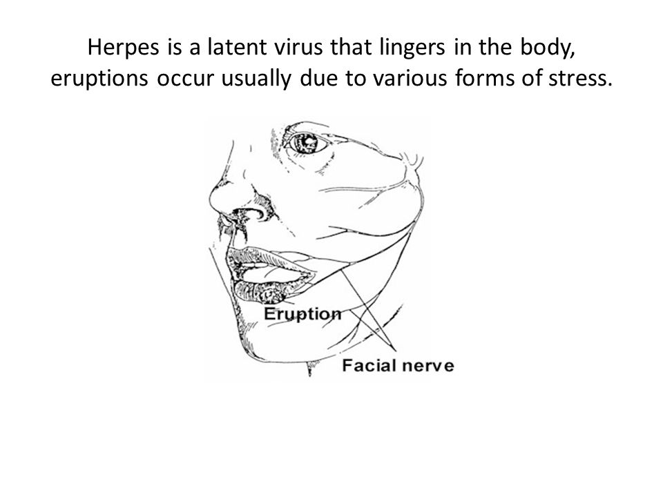 Herpes is a latent virus that lingers in the body, eruptions occur usually due to various forms of stress.