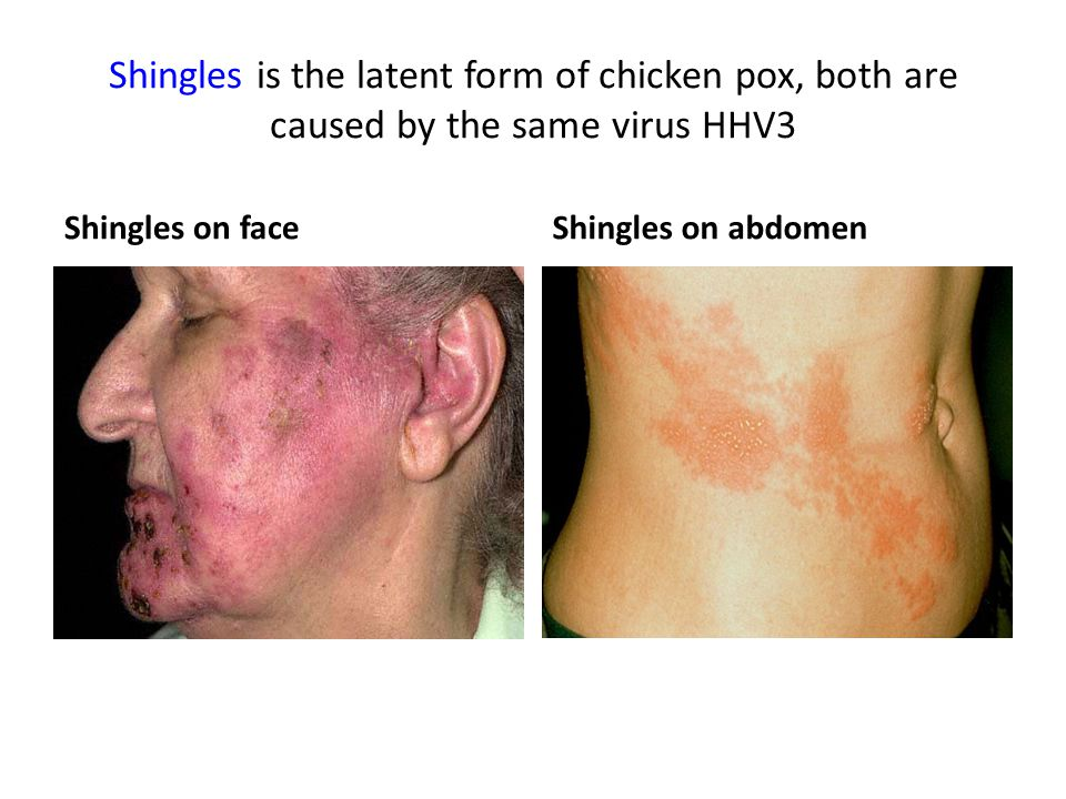 Shingles is the latent form of chicken pox, both are caused by the same virus HHV3 Shingles on faceShingles on abdomen